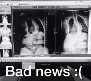 Picture of Max 's scoliosis monitoring x-ray in Sept 2015